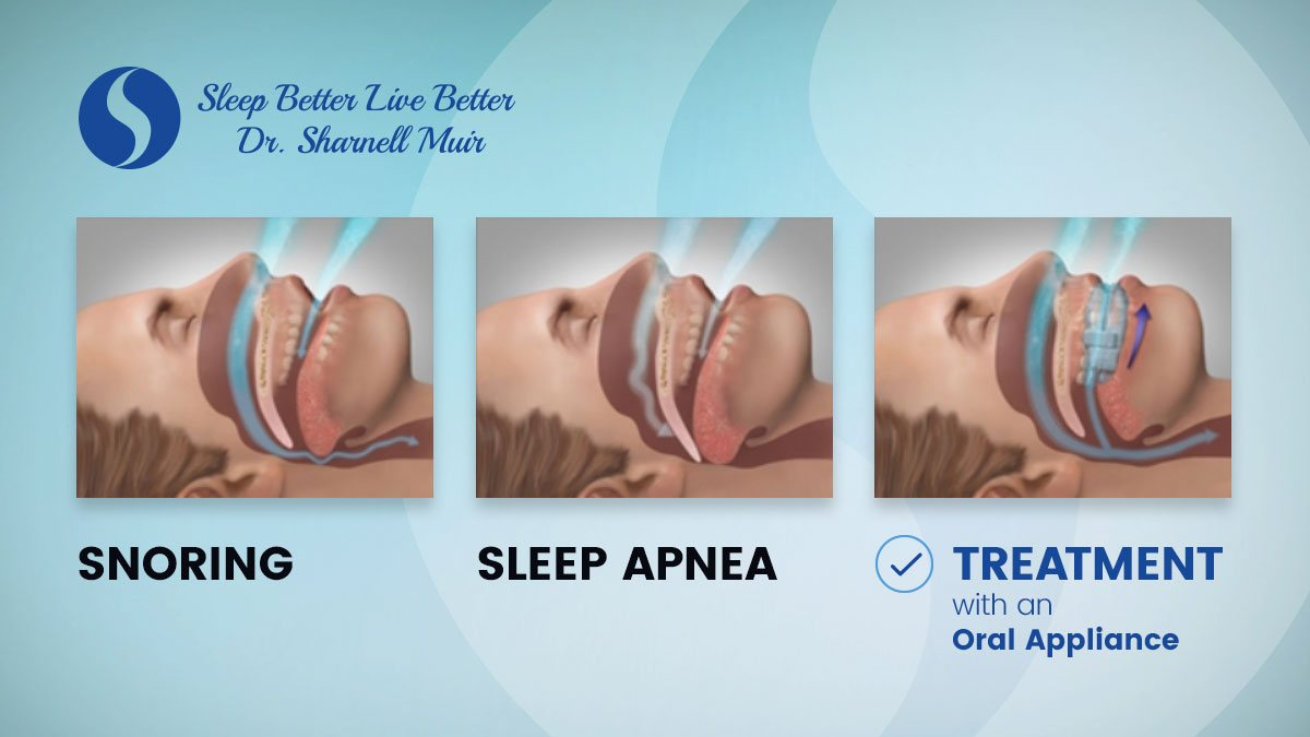 The effects of snoring and sleep apnea treatments with an oral appliance